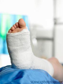 Как сломать ногу в домашних условиях без боли