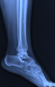 X-ray ankle joint.
